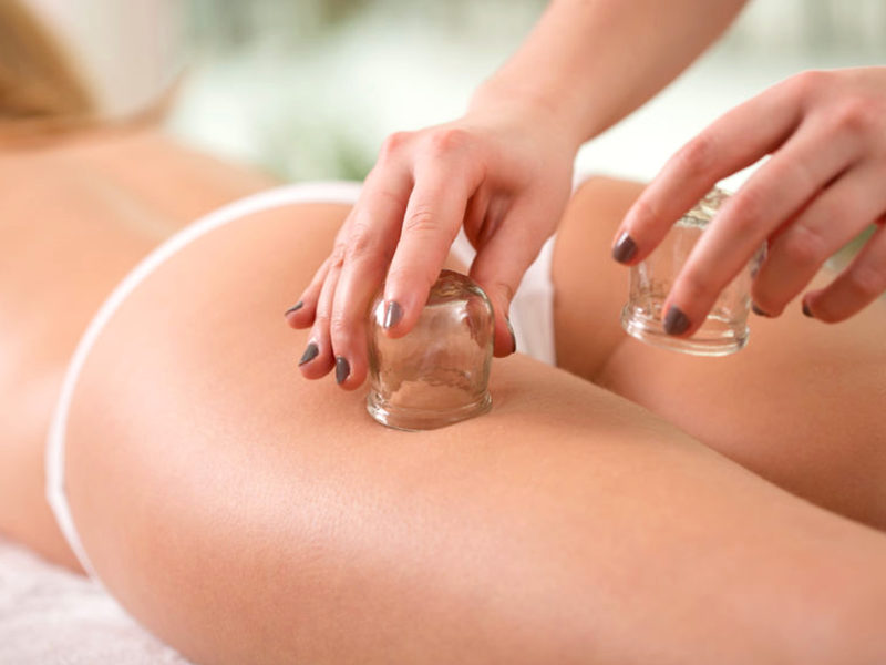 Cupping, coppette e massaggio per cellulite, drenare e rassodare