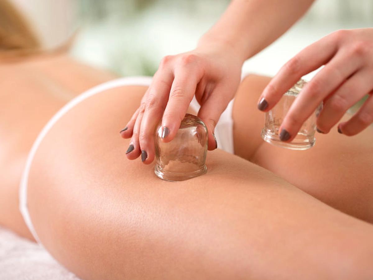 Cupping, coppette e massaggio per cellulite, drenare e rassodare
