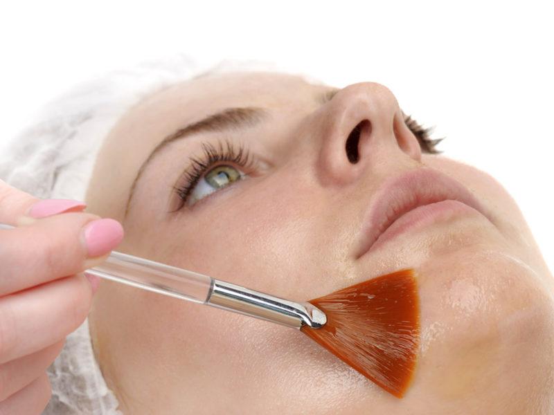 Peeling viso con acidi biorivitalizzanti liftanti