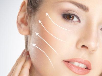 Fili di sospensione o trazione viso, Medicina Estetica