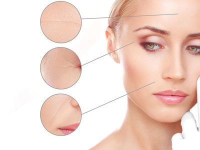 Filler a base di Collagene, Medicina Estetica