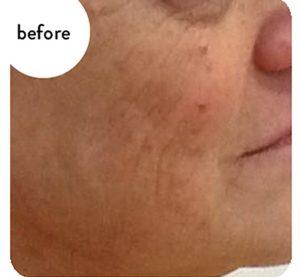 3 Tecnologie in 1 con Microneedling, Vacuum e Radiofrequenza frazionata per il ringiovanimento del viso.