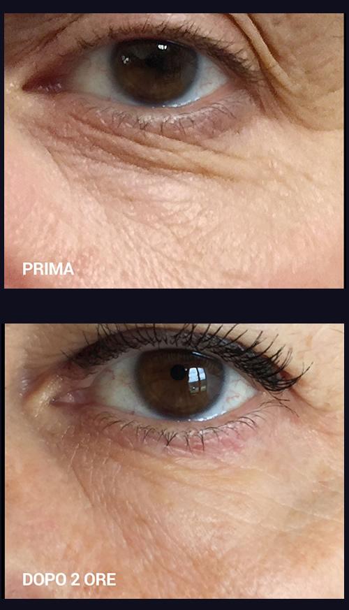 B-Selfie filler contorno occhi, le foto prima e dopo
