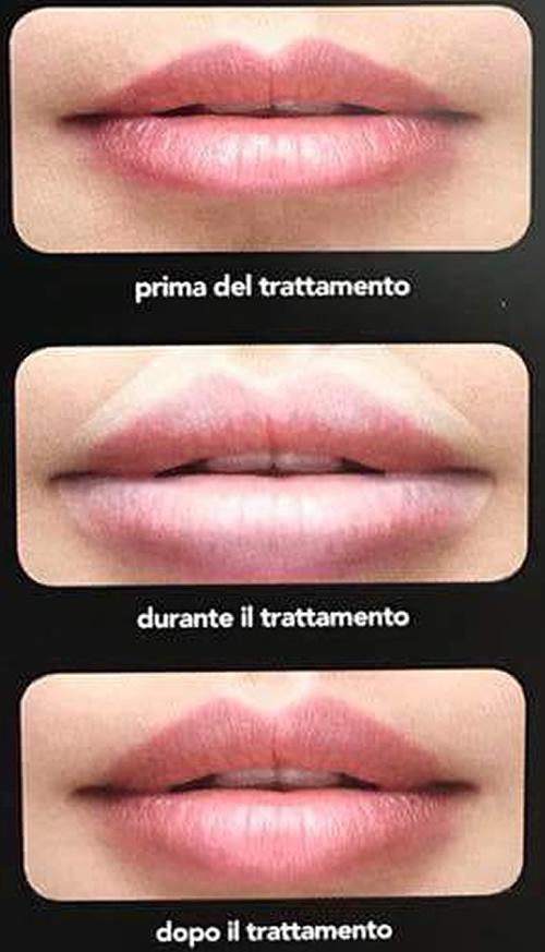B-Selfie volume, il filler per le labbra, le foto prima e dopo