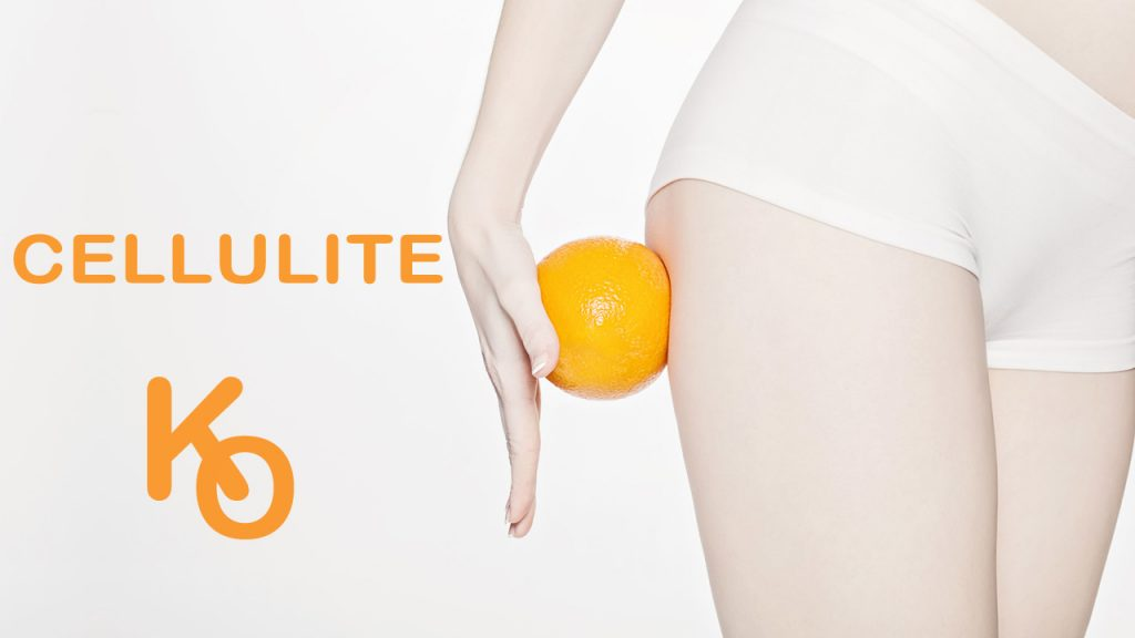La cellulite cos'è e come eliminarla