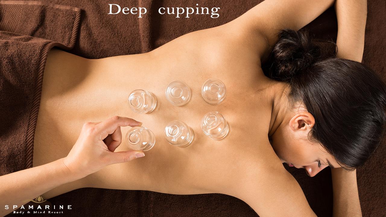 Deep cupping in offerta