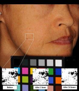 Foto discromie del viso